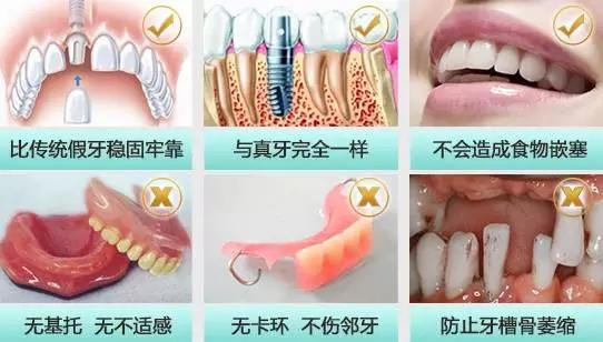 牙齿松动或缺失,可考虑种植牙齿_宁波牙博士口腔医院